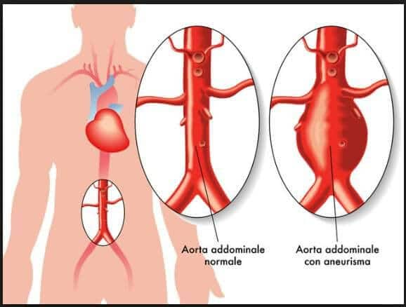 aneurisma torino