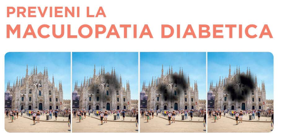 maculopatia-diabetica
